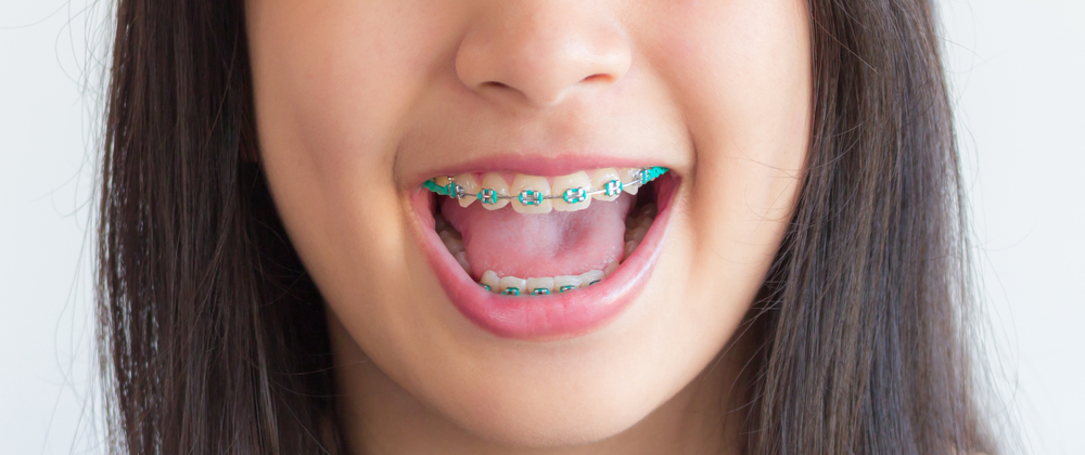 A closeup on a girl's braces with teal bands.
