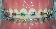 Colored Braces on a teeth model