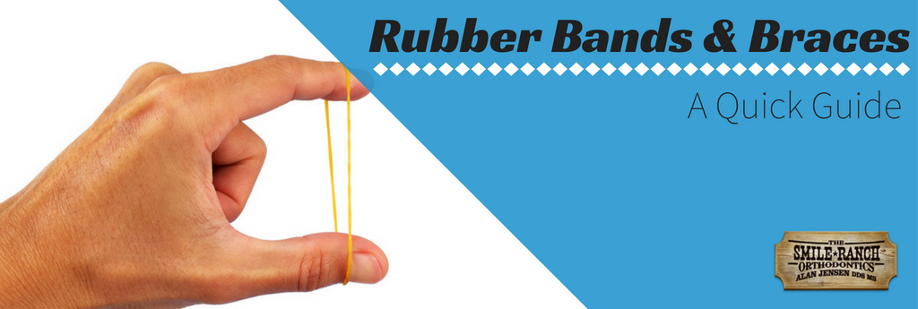 Rubber Bands and Braces: A Quick Guide