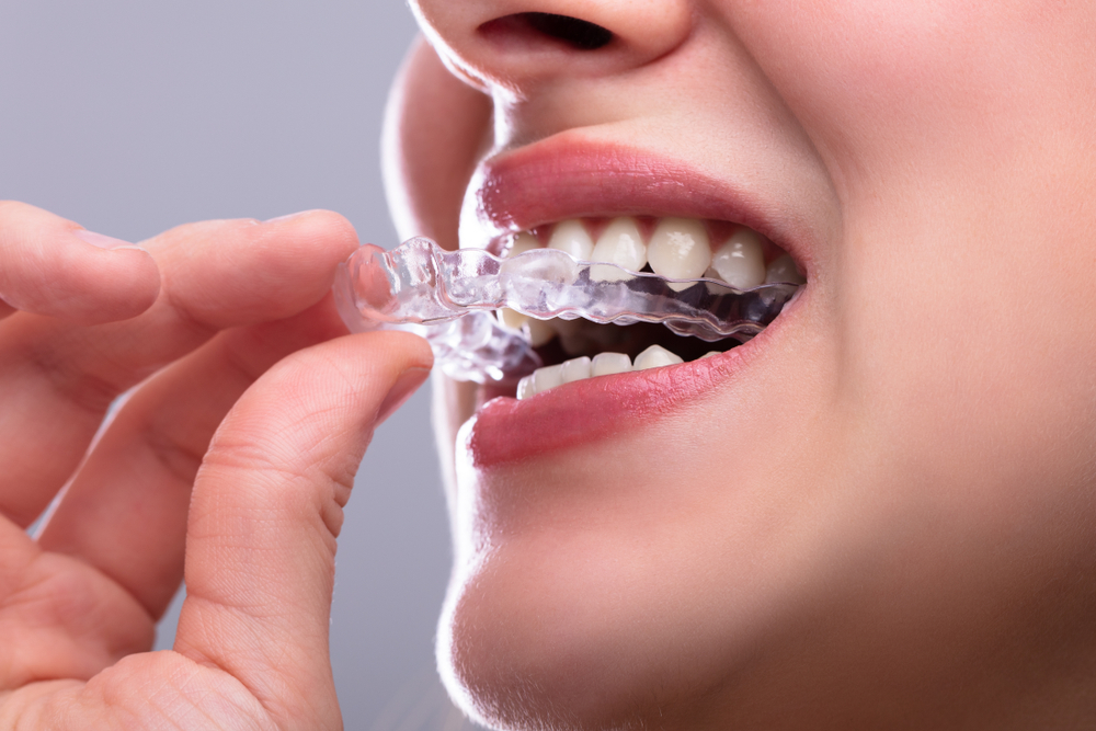 female putting clear aligner in her mouth
